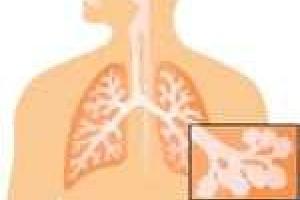 Sa tratam natural virozele respiratorii